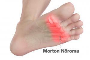 Morton Nöroma